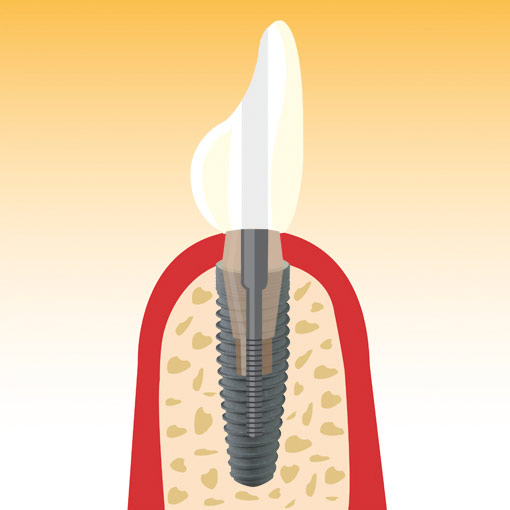 Illustration Implantate