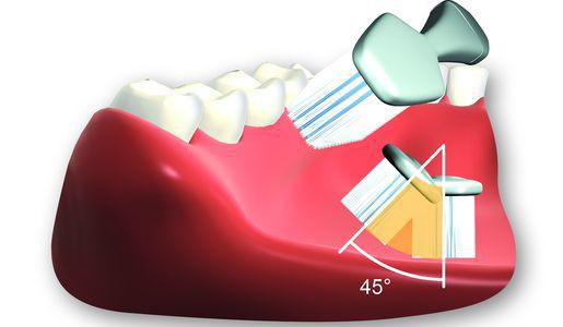 Zähneputzen mit richtiger Zahnputztechnik