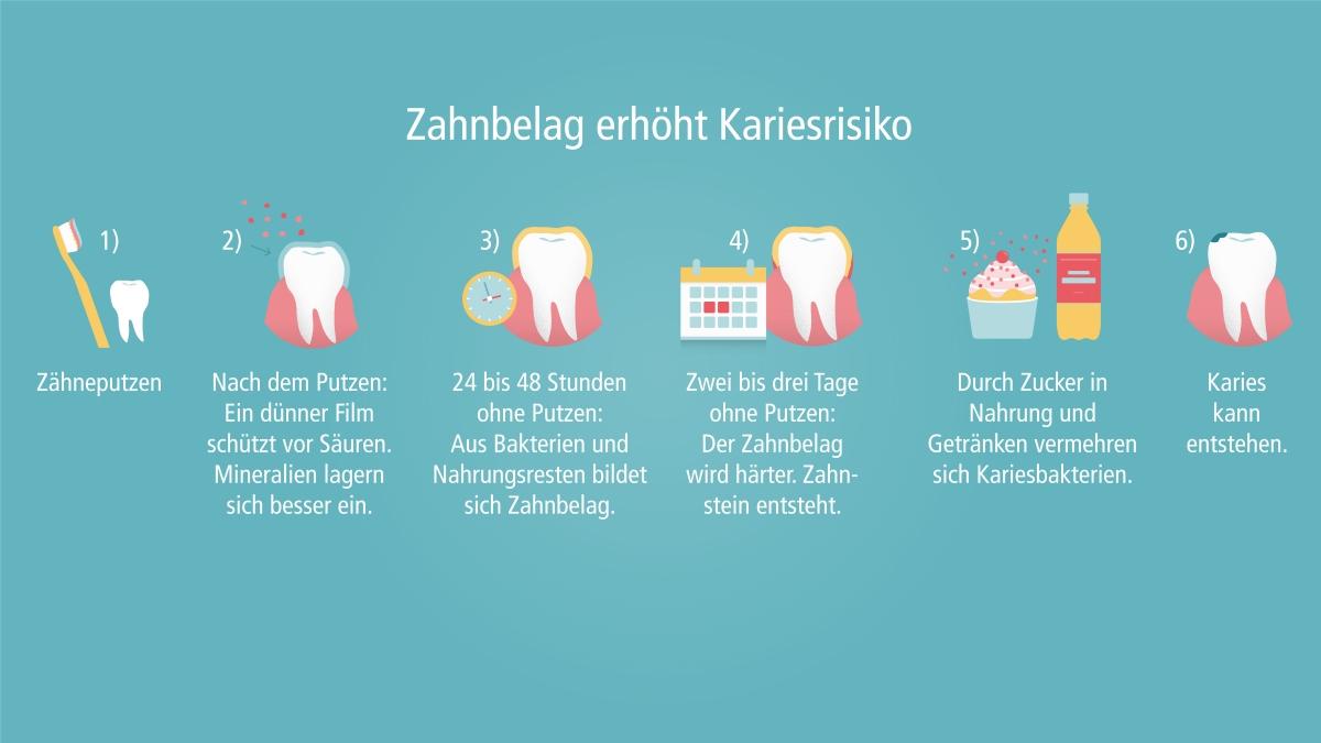 Zahnbelag erhöht Kariesrisiko